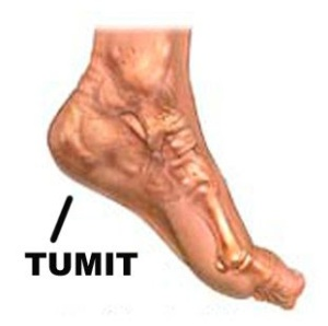 sakit pada tumit